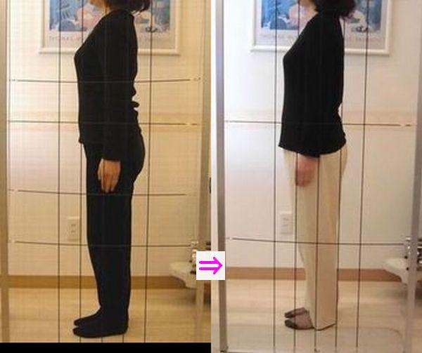 ストレートネックや肩こりと腰痛も改善し体重が8Kg減少