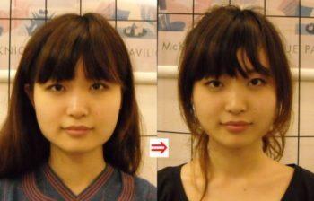 20代女性 小顔美矯正 ビフォーアフター