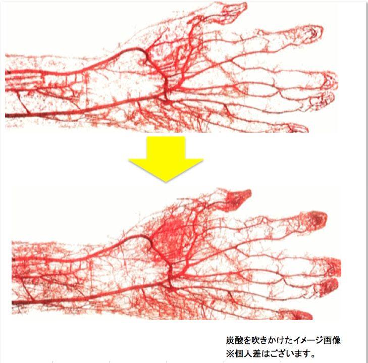 炭酸スプレーをした手の毛細血管のビフォーアフター